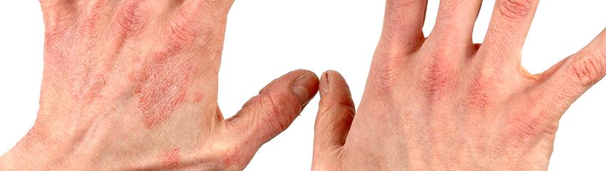 dermatitus